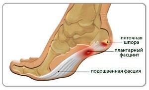 Удар по ногтю большого пальца ноги лечение