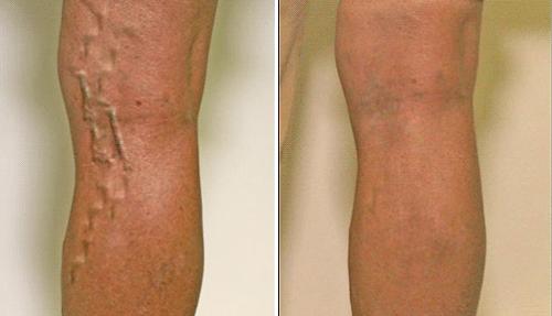 Коричневые пятна на ногах при варикозе
