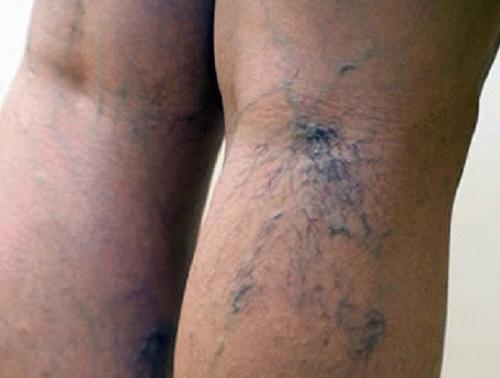 Варикозное расширение вен на ногах при беременности лечение