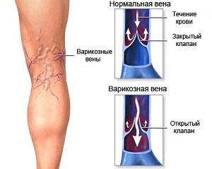 Тромбы в венах на ногах лечение народными средствами быстро