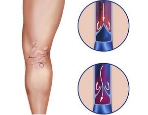 Народные способы лечения варикоза вен ног