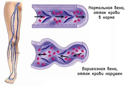 Народные средства от трофических язв на ногах при варикозе