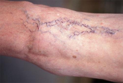 Вены на ногах лечение народными средствами