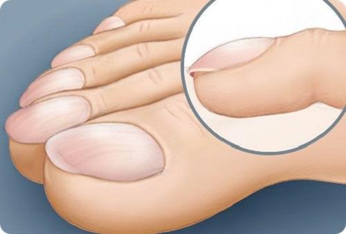 Лечение онихомикоза ногтей беременным