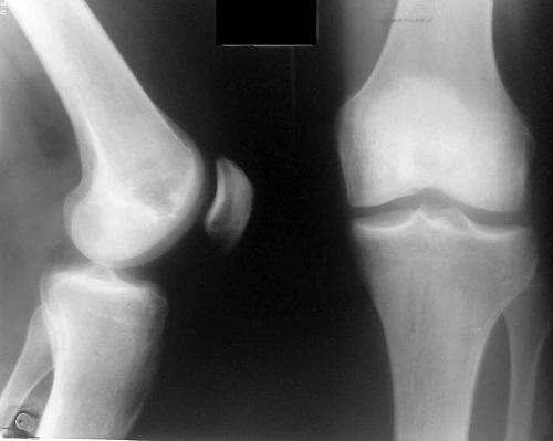 koksartroz-kolennogo-sustava-simptomi-i-lechenie