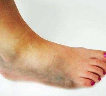 Как оказать первую медицинскую помощь при вывихе ноги и как лечить поврежденный сустав?