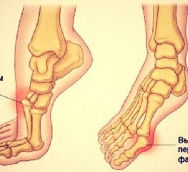 Что делать, если вывихнул палец на ноге?