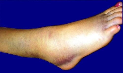 Артрит голеностопного сустава: симптомы и лечение, проявление ...