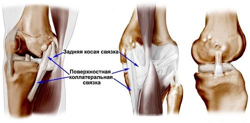 Воспаление связок коленного сустава: симптомы и лечение заболевания