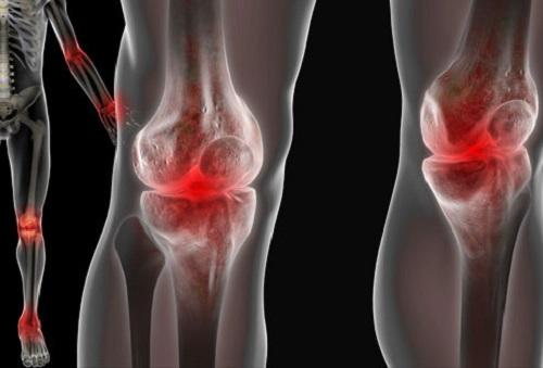 Реактивный артрит: симптомы у детей и взрослых, лечение ...