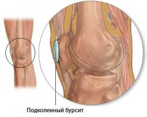 Болят колени после бега: причины появления болевого синдрома