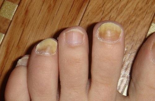 Утолщение ногтей на ногах причины и лечение народными средствами