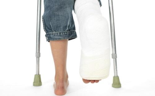 Как разработать ногу после операции на коленном суставе - 829e