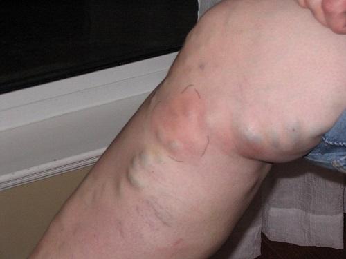 Как лечить варикоз на ноге помидорами