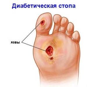 diabet-stopa2