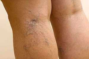 Корректирующее белье при варикозе