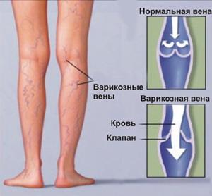 Физкультура при варикозе нижних конечностей