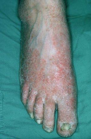 Синяк ногти лечение
