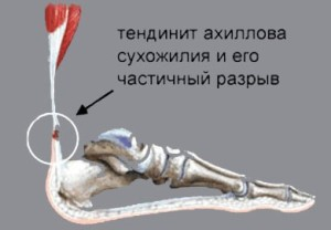 tendinit2