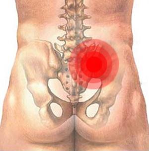 Симптомы и лечение сакроилеита