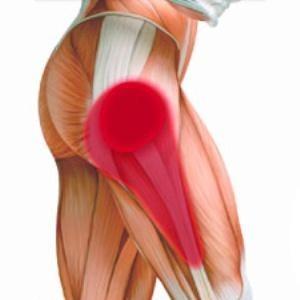 Подвывих тазобедренного сустава у взрослых - симптомы и лечение