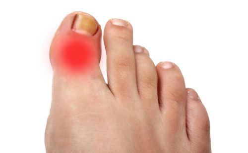 Артрит сустава большого пальца ноги - симптомы и лечение
