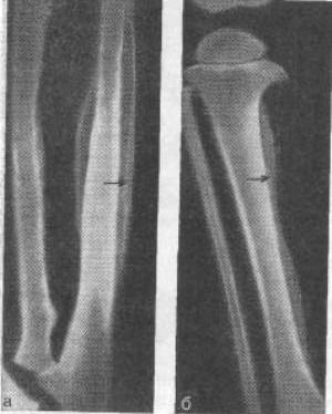 Что за патология гиперостоз костей?