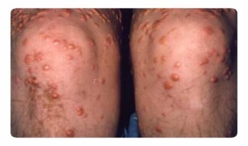 Лечение псориаза в больнице - История и истЕрия