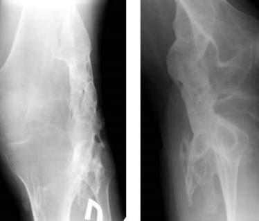 Симптомы и лечение оссификации мягких тканей