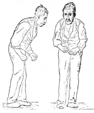 Типы и признаки развития дрожательного паралича