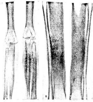 Диагностика и лечение болезни Камурати-Энгельманна