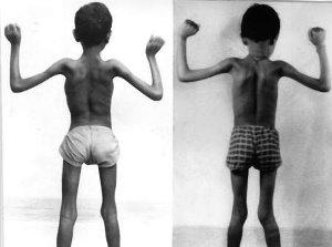 Проявления и диагностика миотонической дистрофии