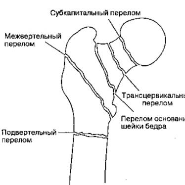 Причины, проявления и лечение подвертельного перелома