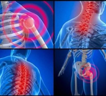 Симптомы и лечение гигантоклеточного артериита с ревматической полимиалгией