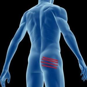 Проявления и терапия тендинита ягодичных мышц