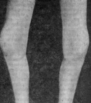 Симптомы и лечение юношеского артрита с системным началом