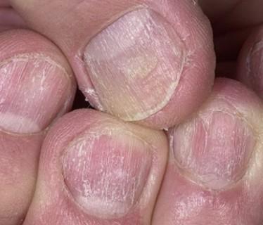 Болит затылок слева лечение