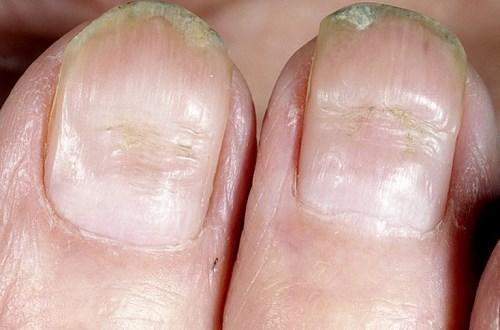 На ногтях бороздки