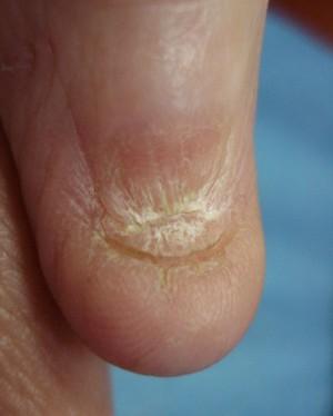 Причины и лечение птеригиума ногтя