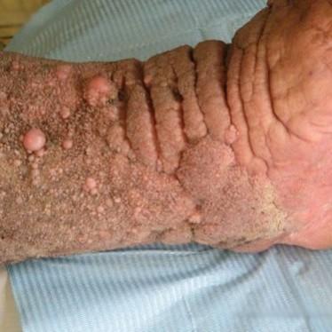 Проявления и лечение папилломатоза