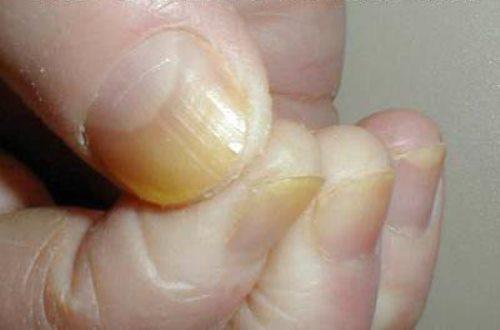 Мазь от грибка между пальцами рук отзывы