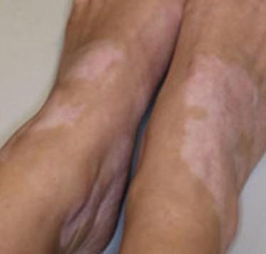 Классификация и причины развития дисхромии кожи
