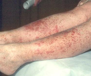 Симптомы и лечение воспаления сосудов ног