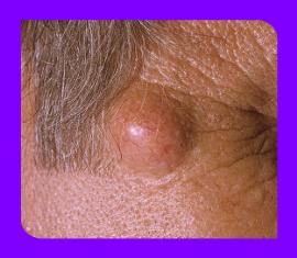 Клинические проявления и диагностирование себоцистоматоза кожи