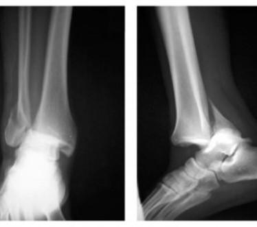 Виды, симптомы и лечение перелома лодыжки с подвывихом