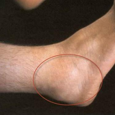 Проявления и лечение теносиновита голеностопного сустава