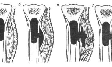 Классификация, причины и лечение гематогенного остеомиелита