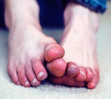 Симптомы и лечение обморожения пальцев ног
