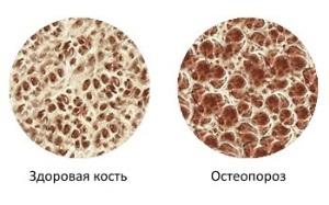 Симптомы и лечение остеопороза стопы