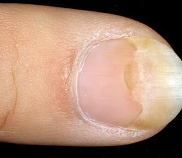 Причины, признаки и лечение отслоения ногтевой пластины